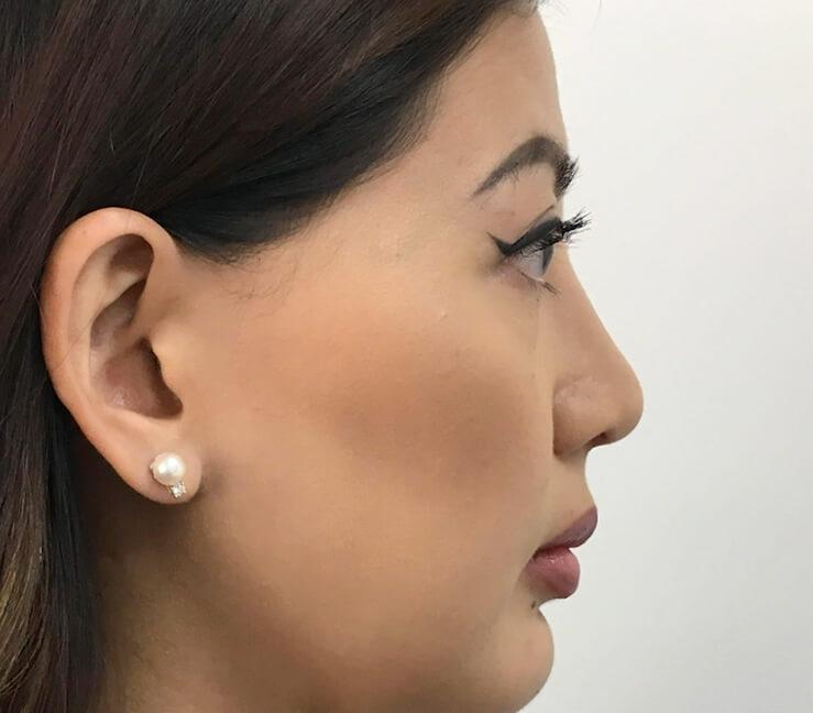 Sinus Surgery Sydney | Dr Zacharia