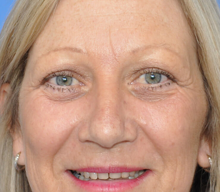 Eyelid Surgery Sydney | Blepharoplasty Sydney | Dr Zacharia