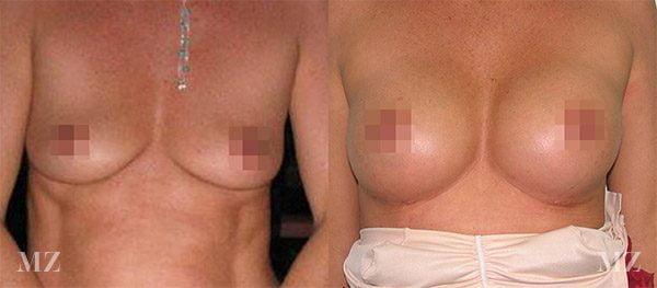 breastaug_3_ba_