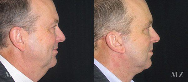 face&necklift_11_ba_