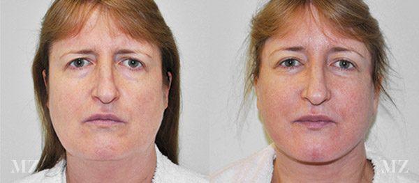 face&necklift_14_ba_