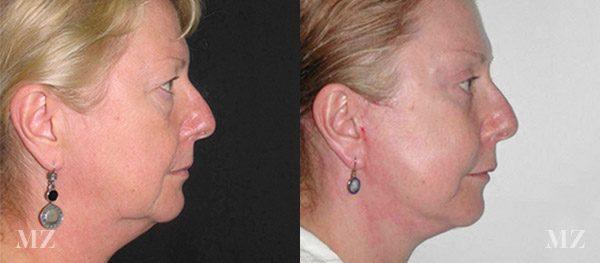 face&necklift_17_ba_