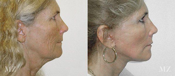face&necklift_18_ba_