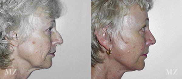 face&necklift_21_ba_