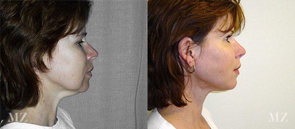 face&necklift_23_ba_