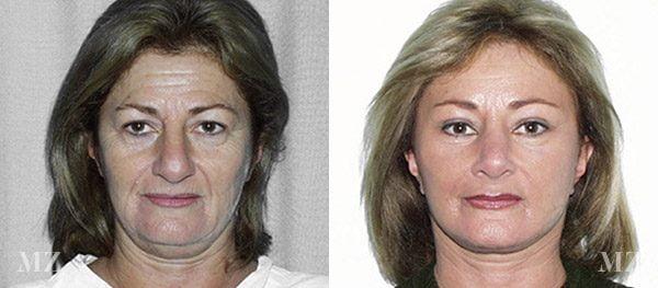 face&necklift_24_ba_