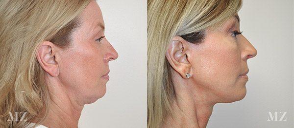 face&necklift_3_ba_