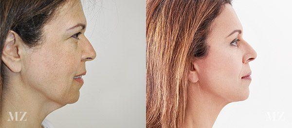 face&necklift_4_ba_