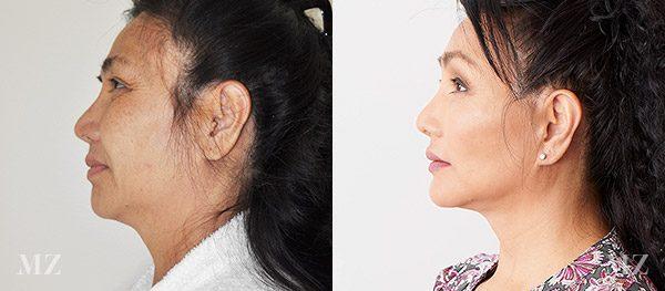 face&necklift_5_ba_