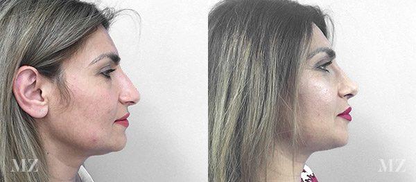 face&necklift_6_ba_