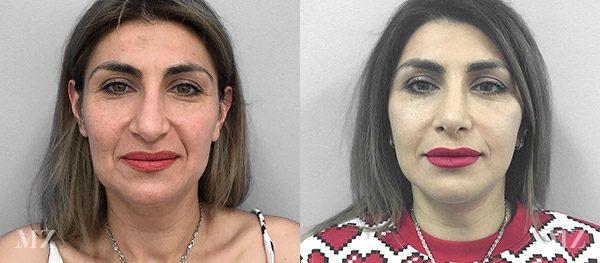 face&necklift_7_ba_