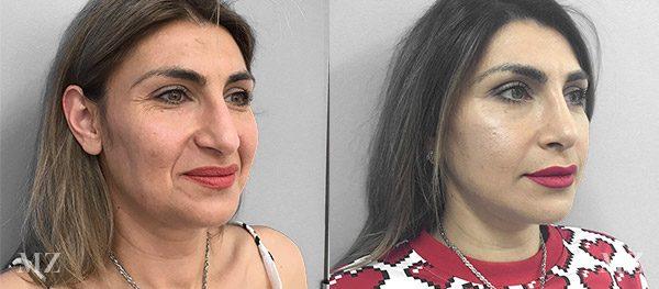 face&necklift_8_ba_