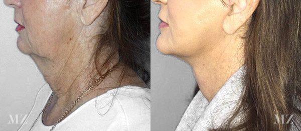 face&necklift_9_ba_