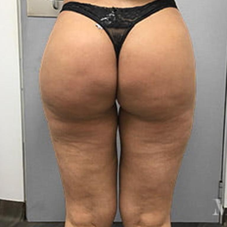butt-lift-1-after