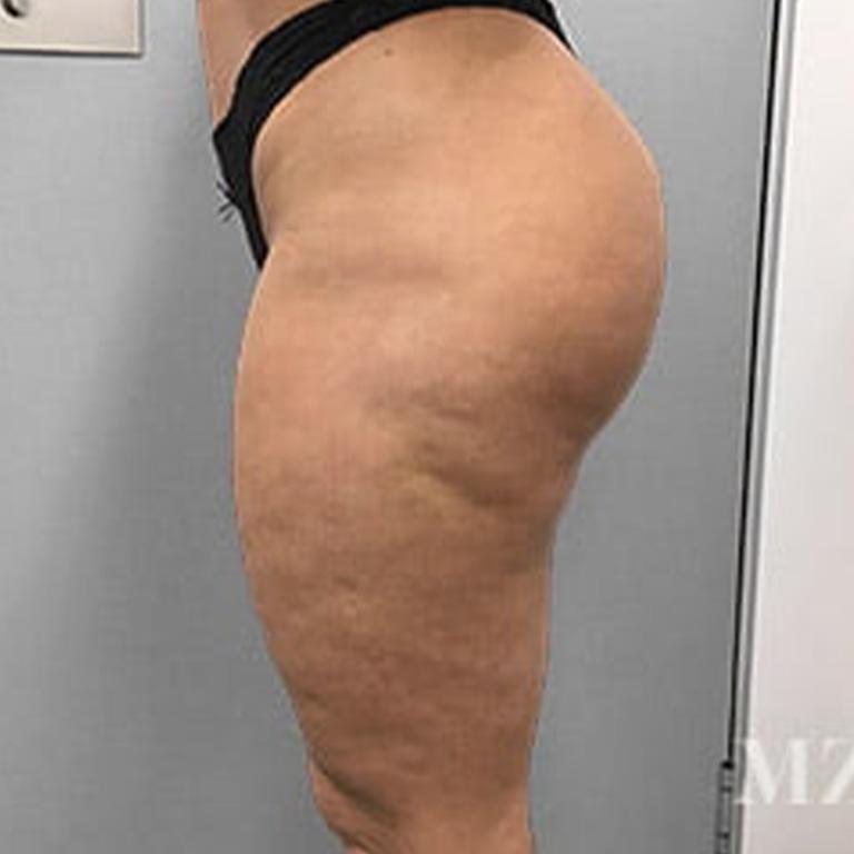 butt-lift-2-after