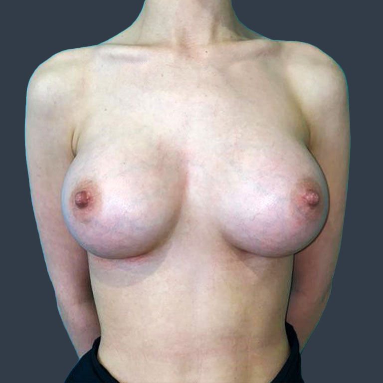 bbh-breast-augmentation-after-2