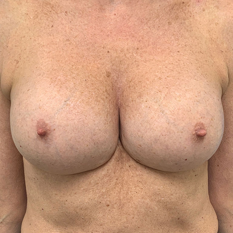 bbh-breast-augmentation-after-3