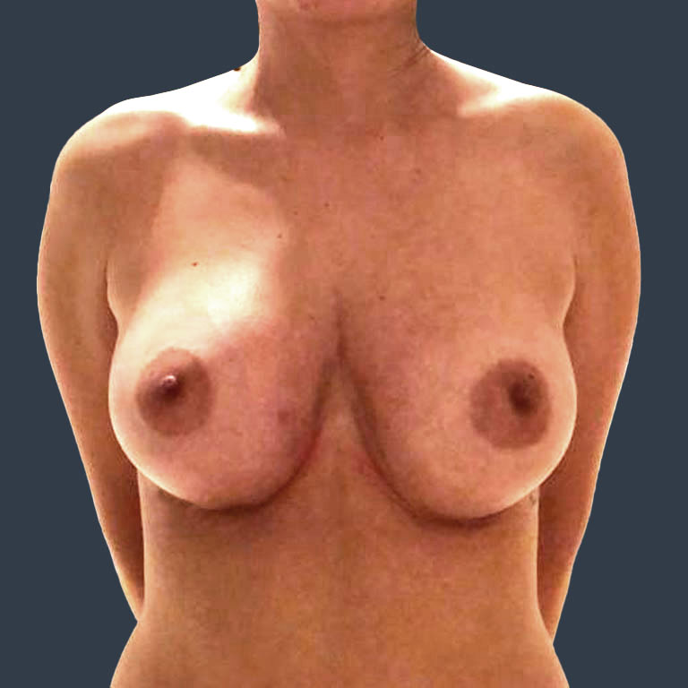 bbh-breast-augmentation-after1