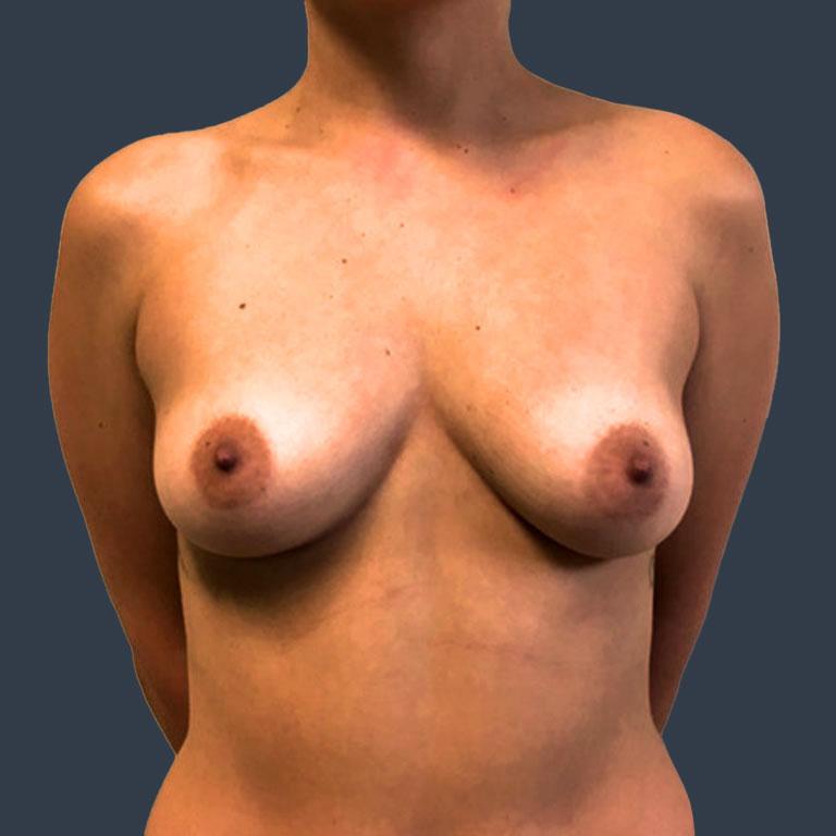 bbh-breast-augmentation-before-1