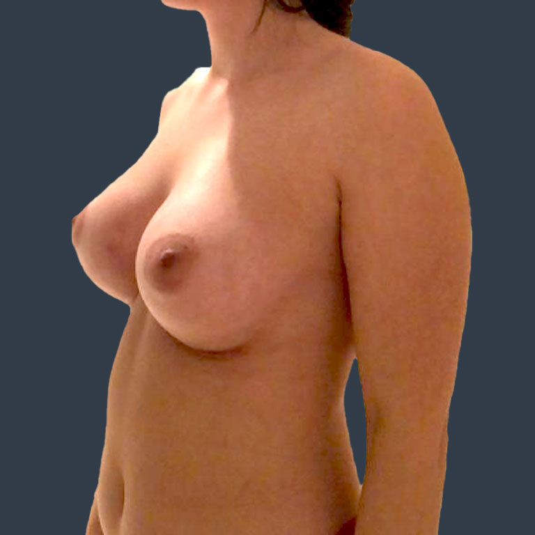 bbh-breast-augmentation-after-4
